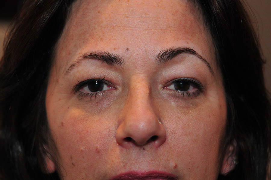CO2 Laser Resurfacing Before & After Image
