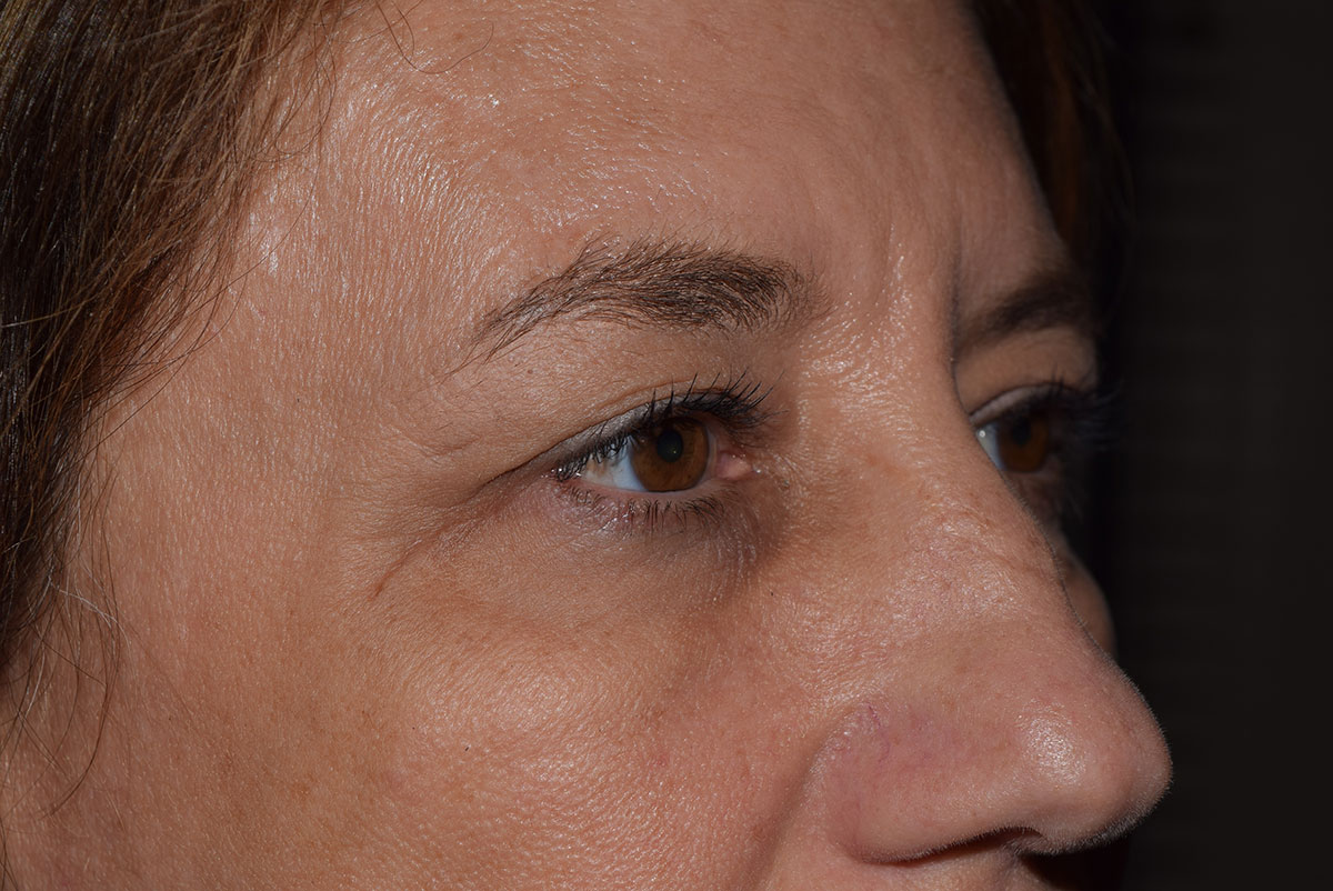Endoscopic Brow Lift Before & After Image
