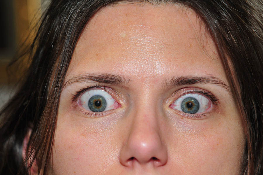 Eyelid Correction Before & After Image