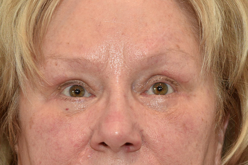 Lower Blepharoplasty Before & After Image