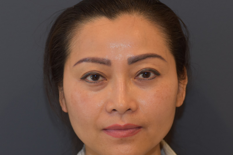 Upper Blepharoplasty Before & After Image