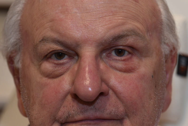 Ptosis Repair Before & After Image